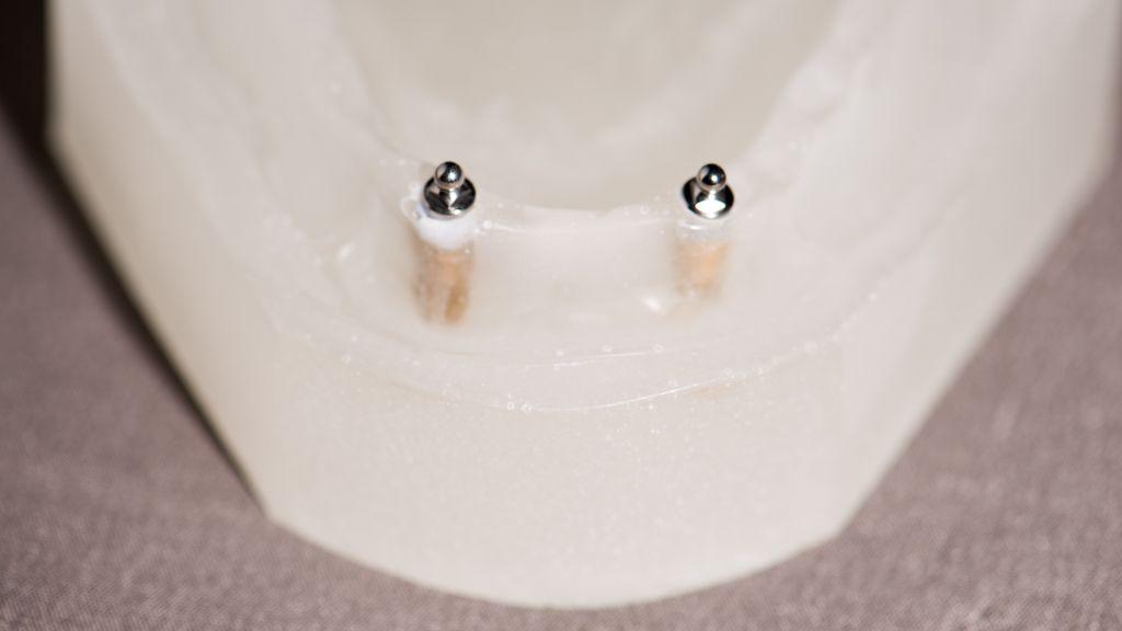 Drukknoppen voor implantaat